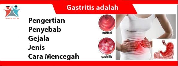 Gastritis adalah