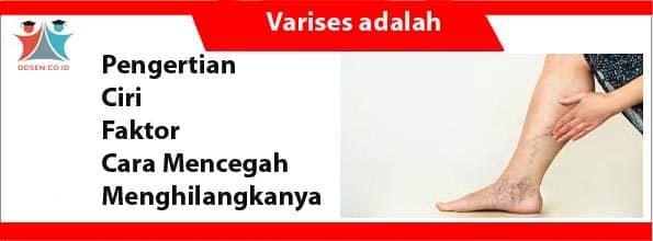 Varises adalah